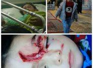 حمله سگ به دختر ۴ ساله در کوجووار/شهرداری: به ما مربوط نیست