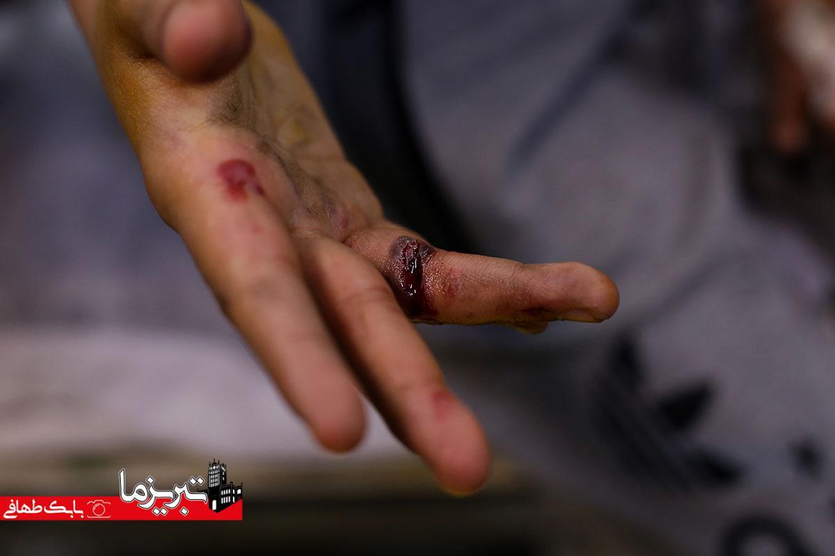 گزارش تصویری از مصدومین چهارشنبه سوری سال ۹۷ در تبریز